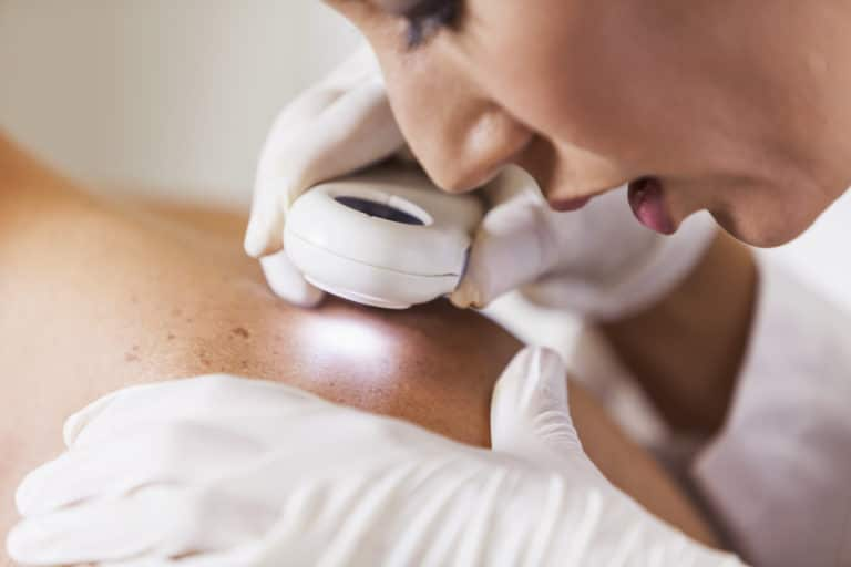 Doctor examining patient for signs of skin cancer
